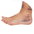 Ankle Sprains Adelaide