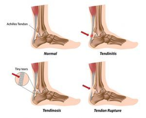 Achilles Tendonitis Kingswood