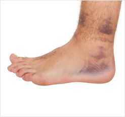 Ankle Sprain Adelaide