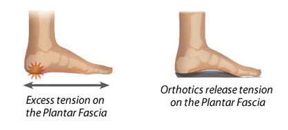 Custom Orthotics Adelaide